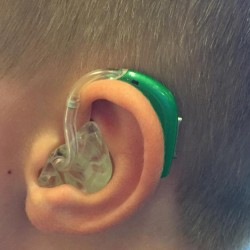 A silent problem: Children's hearing aids are not covered by most insurance
